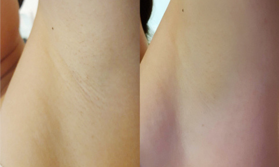 Review: Is Japan IPL's Underarm Treatment The Key To Perfect